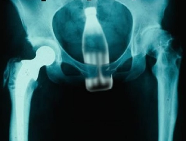 Coke Bottle Found With X-Ray