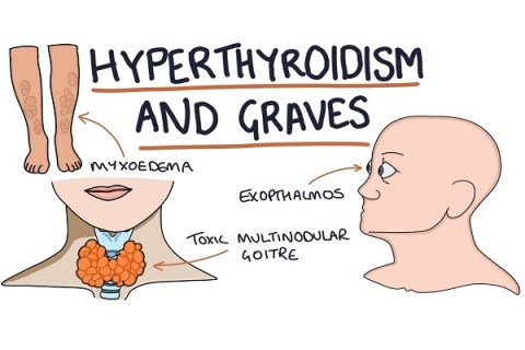 10 Signs You May Be Suffering From Hyperthyroidism
