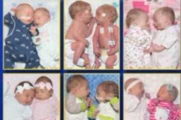 Six sets of twins born at a Missouri hospital in one month