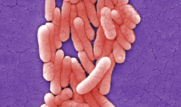 Airborne Antibiotic-Resistant Bacteria Traced In Texas Could Pose Threat to Humans