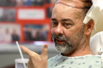 """Doctor's Perform world's first skull and scalp transplant, plus a new kidney and pancreas"""