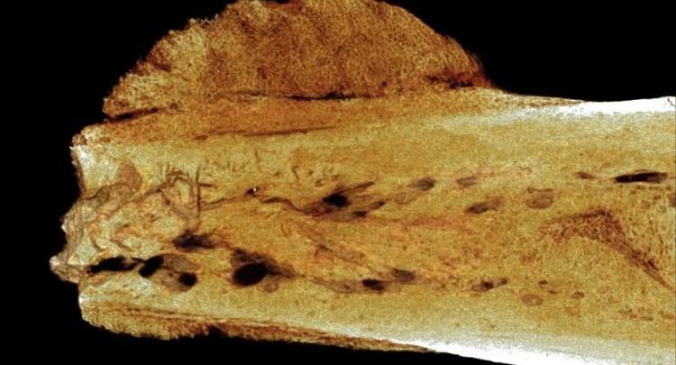 The earliest hominin cancer. Credit: Patrick Randolph-Quinney