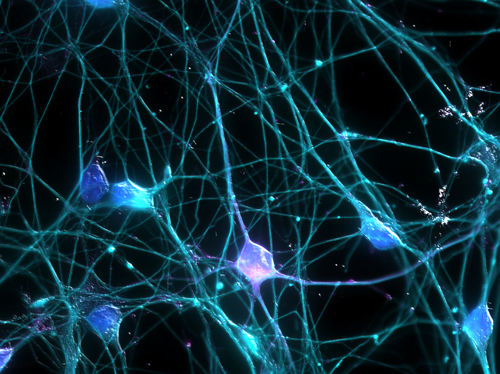 A memory is made up of a network of neurons in the brain. Credit: UCI Research/Flickr CC BY-NC 2.0