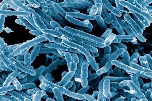Mycobacterium tuberculosis Bacteria. Credit: NIAID, via Wikimedia Commons