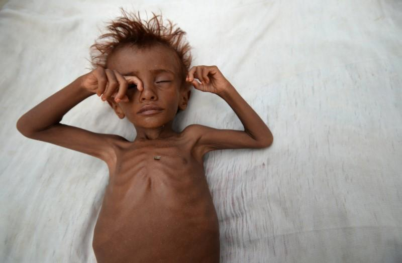 United Nations for first time links conflict to starvation in 4 countries