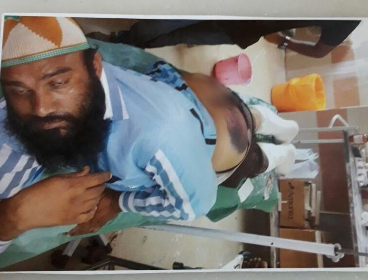 Qureshi after being beaten. Courtesy: Damayantee Dhar