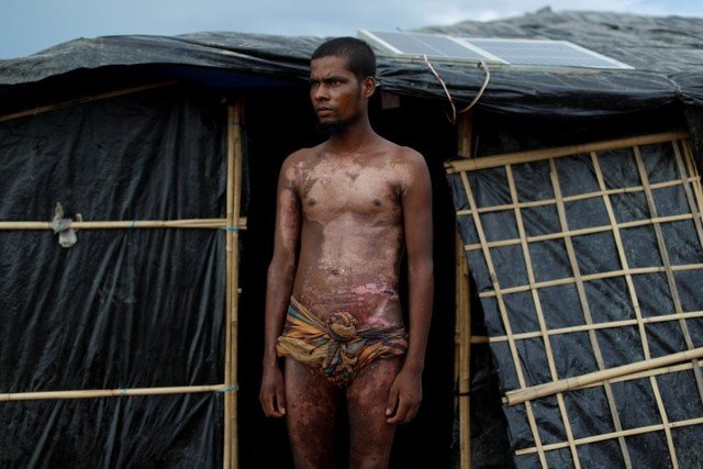 Rohingya refugee Mohamed Jabair, 21, poses for a photograph to show burns on his bodies, which he said he sustained when his house was set on fire in Myanmar, at Kutupalang refugee camp, near Cox's Bazar in Bangladesh, October 17, 2017. Credit: Reuters/Jorge Silva