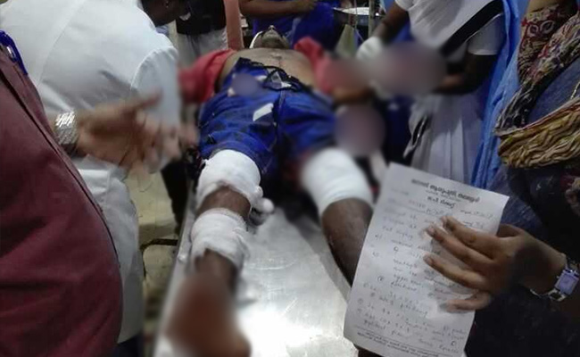 kerala-rss-activist-attacked_650x400_51508087312
