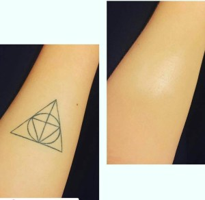 Tattoo before and after