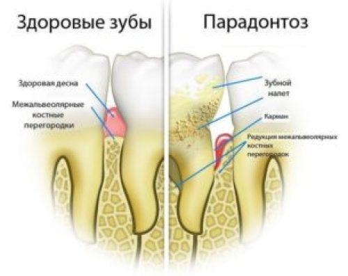 zabolevanie-parodontoz