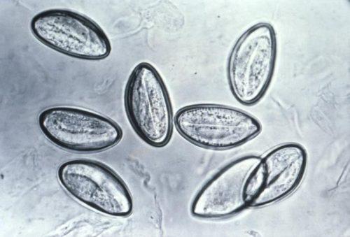 Eggs_of_Enterobius_vermicularis