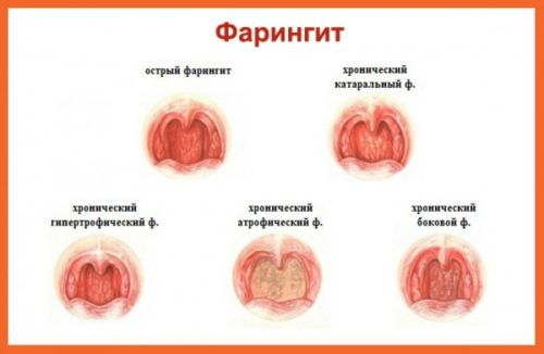 tipy-hronicheskogo-faringita