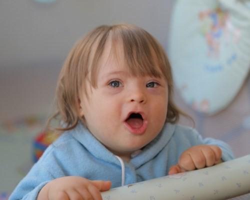 deti-solntsa-ili-deti-s-sindromom-dauna-
