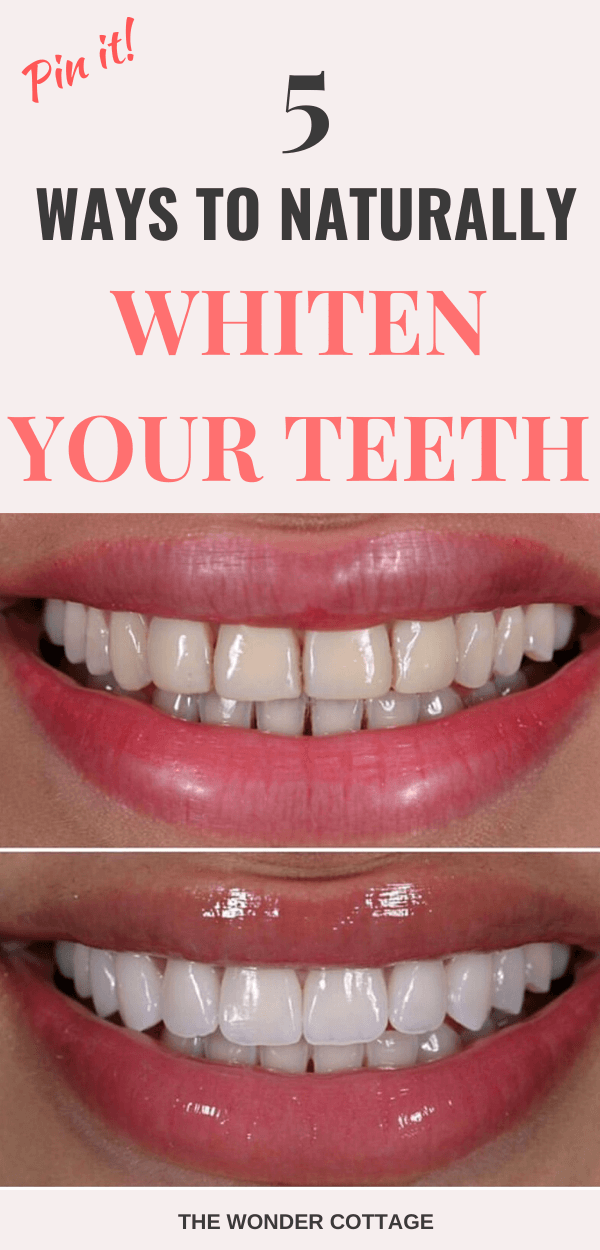 home remedies to whiten teeth