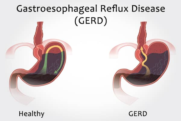 GERD- An Impending Risk For Some Cancers