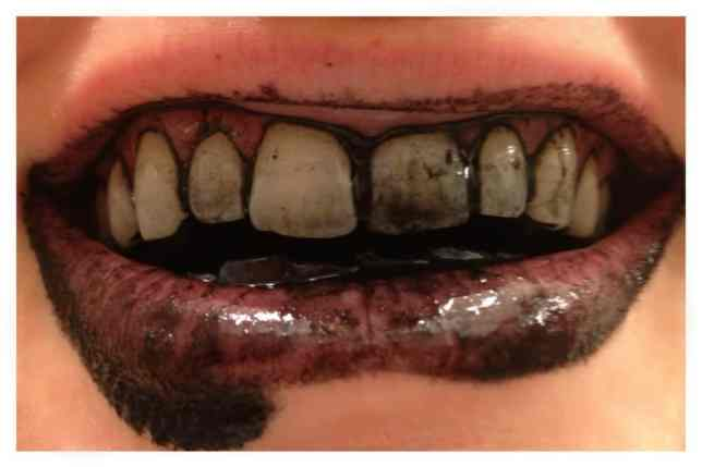 Image result for activated charcoal teeth whitening