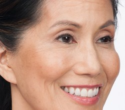 Susan after botox treatment for Crow's Feet