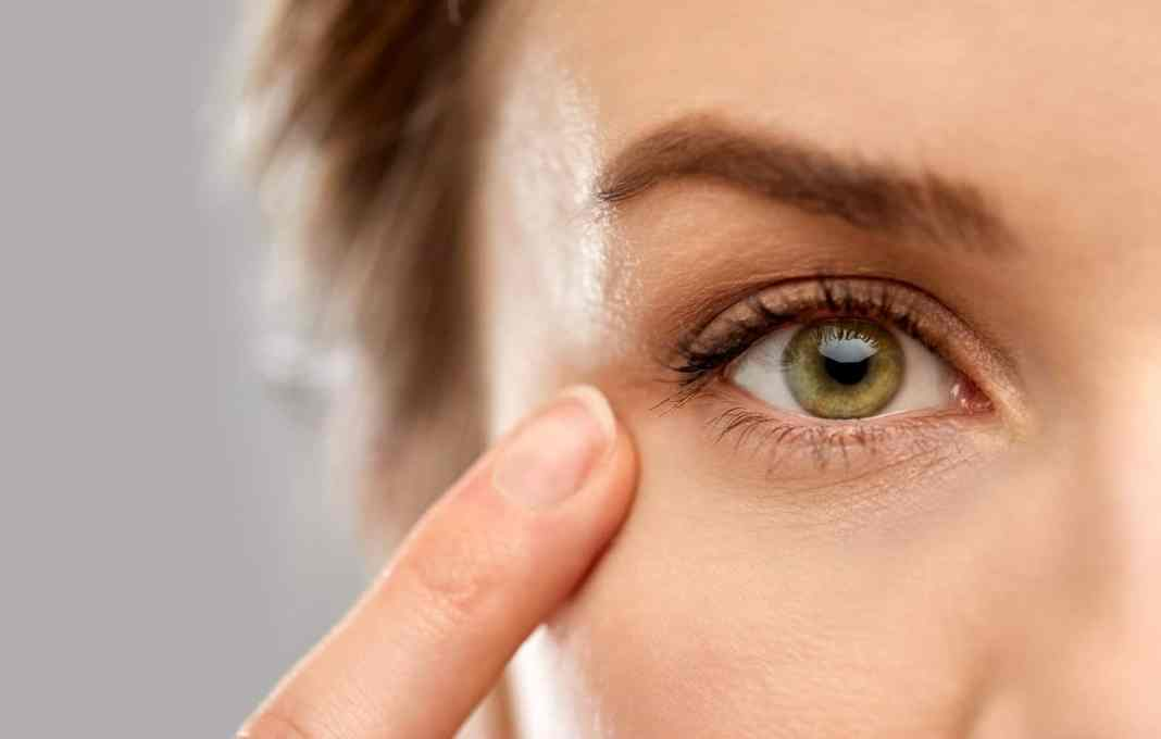 Skin Around the Eyes
