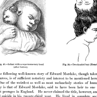 It Was His Devil Twin: The Peculiar Tale of Edward Mordake