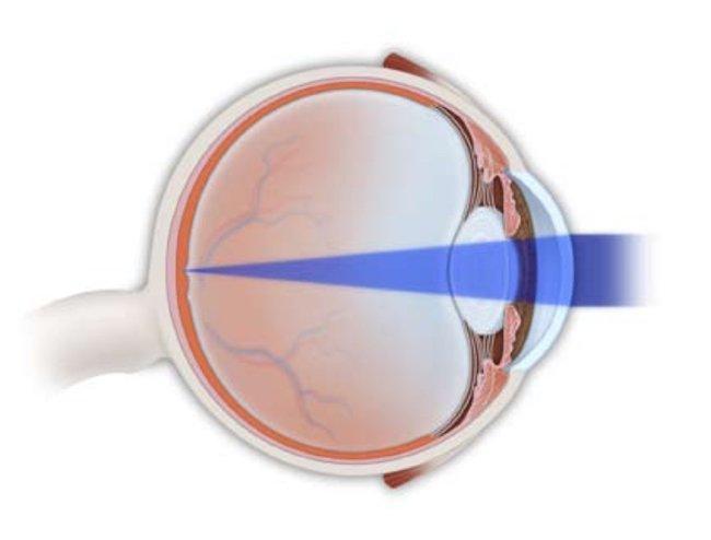 The Eye News_Refractive Eye Surgery_Normal Eye Vision