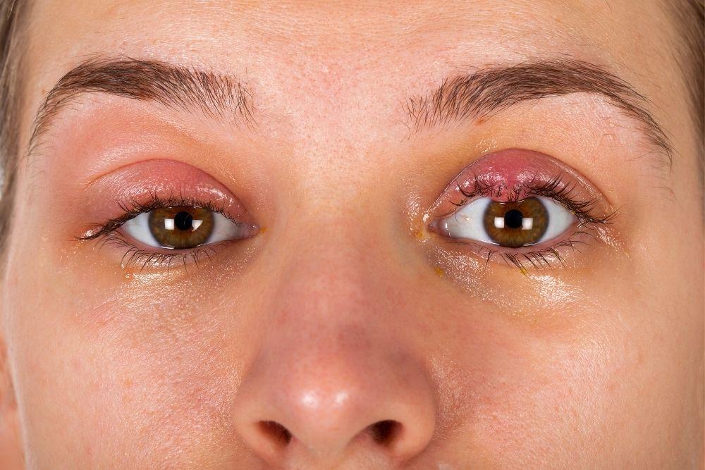 Chalazion Bump on Eyelid Causes & Treatment