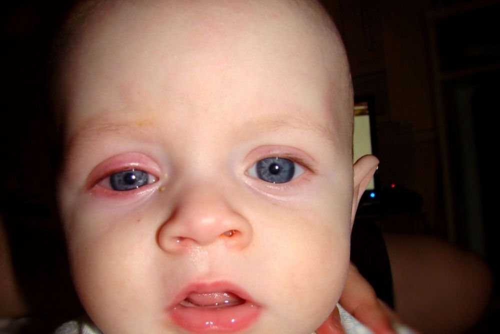 Identification and Treatment of Pink Eye in Babies