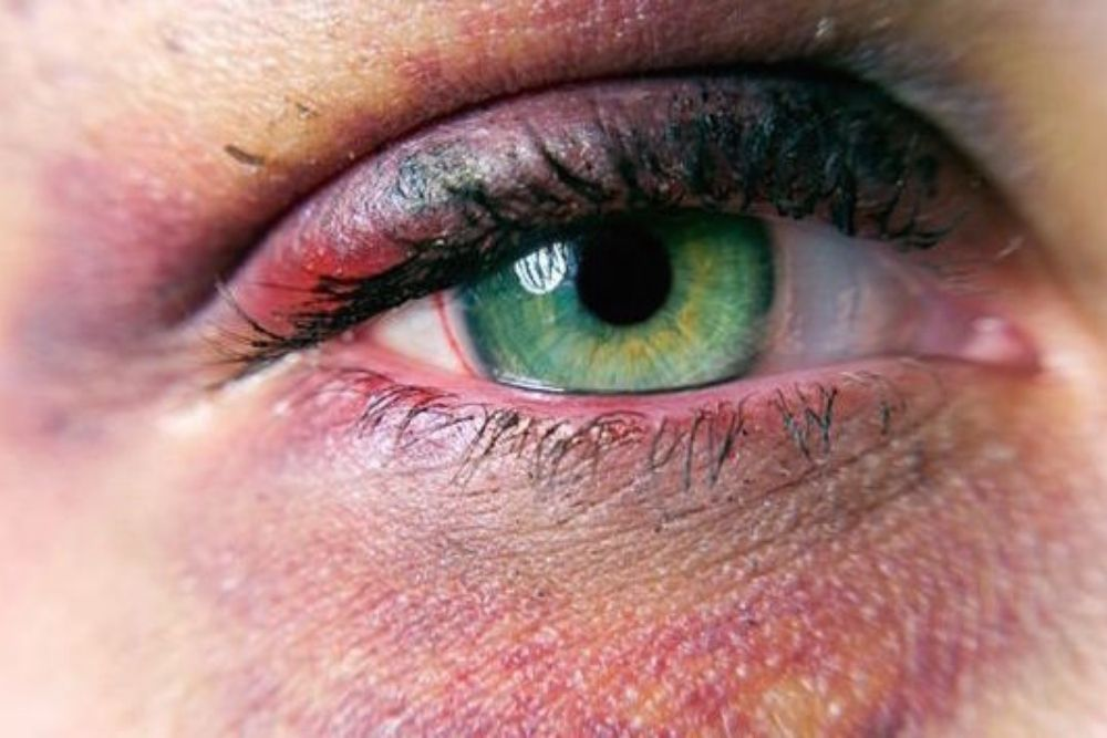 The Causes and Treatment of Black Eye