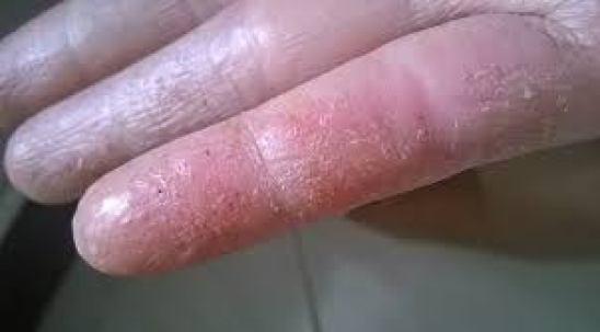 Giai đoạn da nhẵn như vỏ hành của bệnh chàm