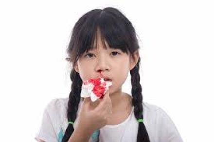 Công dụng của tinh dầu oải hương khắc phục tình trạng chảy máu mũi.