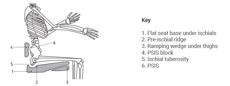Fig 3 Protecting against posterior tilt