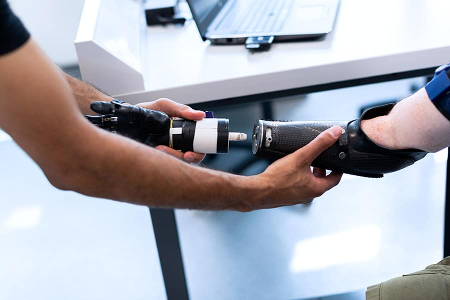 prosthetic arm image