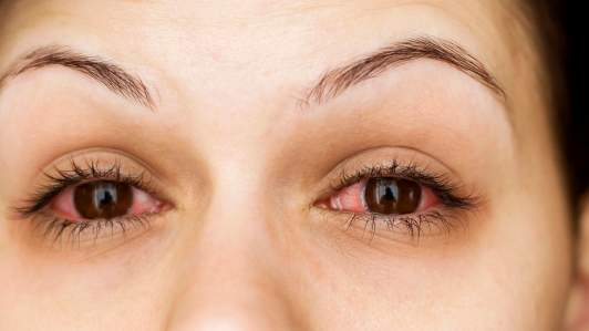 Eyelash Extensions Complications
