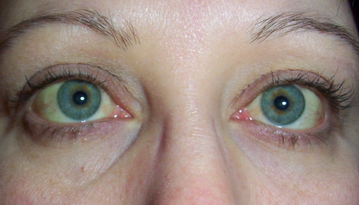 If You Ve Noticed That Your Skin And Eyes Have Developed A Yellowish Tint It Should Not Be Ignored This Tinge Could Mean Some Form