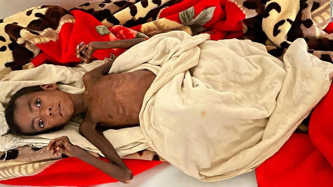 Save The Tigray - The Nobel Peace Prize Is Polluted With The Blood Of The Innocent