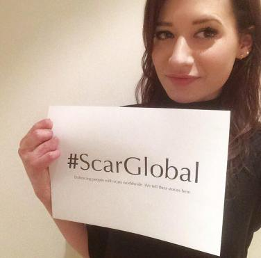 Founder of ScarGlobal, Lucy Wilson was scolded by bathwater (Sheffield, UK).