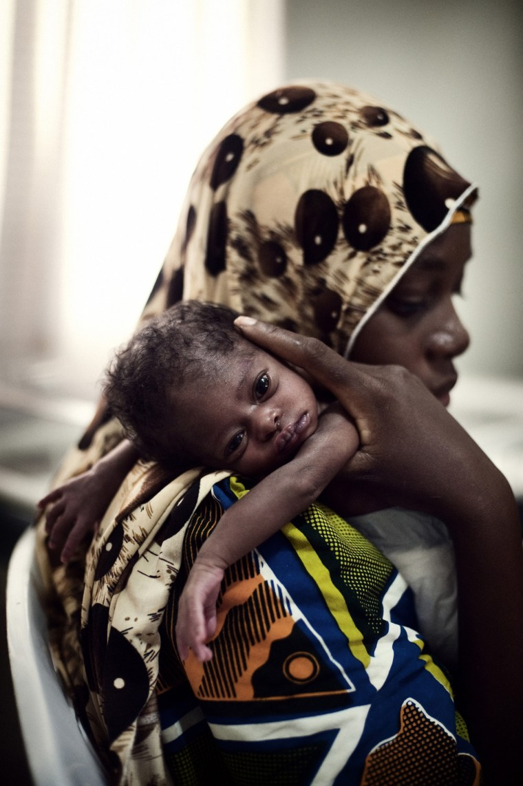 A mother holds her baby suffering from spina-bafida malformation in the special Baby Care Unit at Turai Yaradua maternal and children Hospital, Katsina, Northern Nigeria. Photo Source: Pep Bonet/Noor for Save the Children