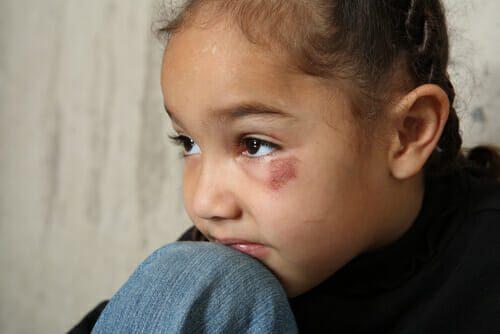Facial abuse bianca zip think