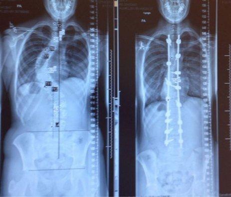 Des rayons X avant et après traitement d'une scoliose