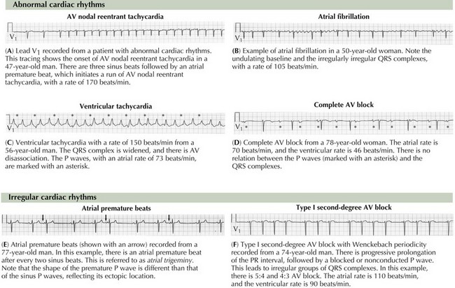 Electrocardiography | Thoracic Key