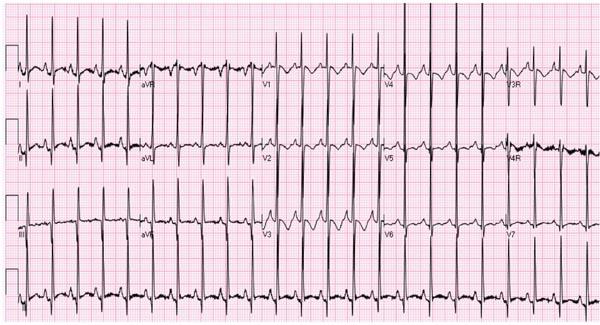 Pulmonary What Markings Vascular Are