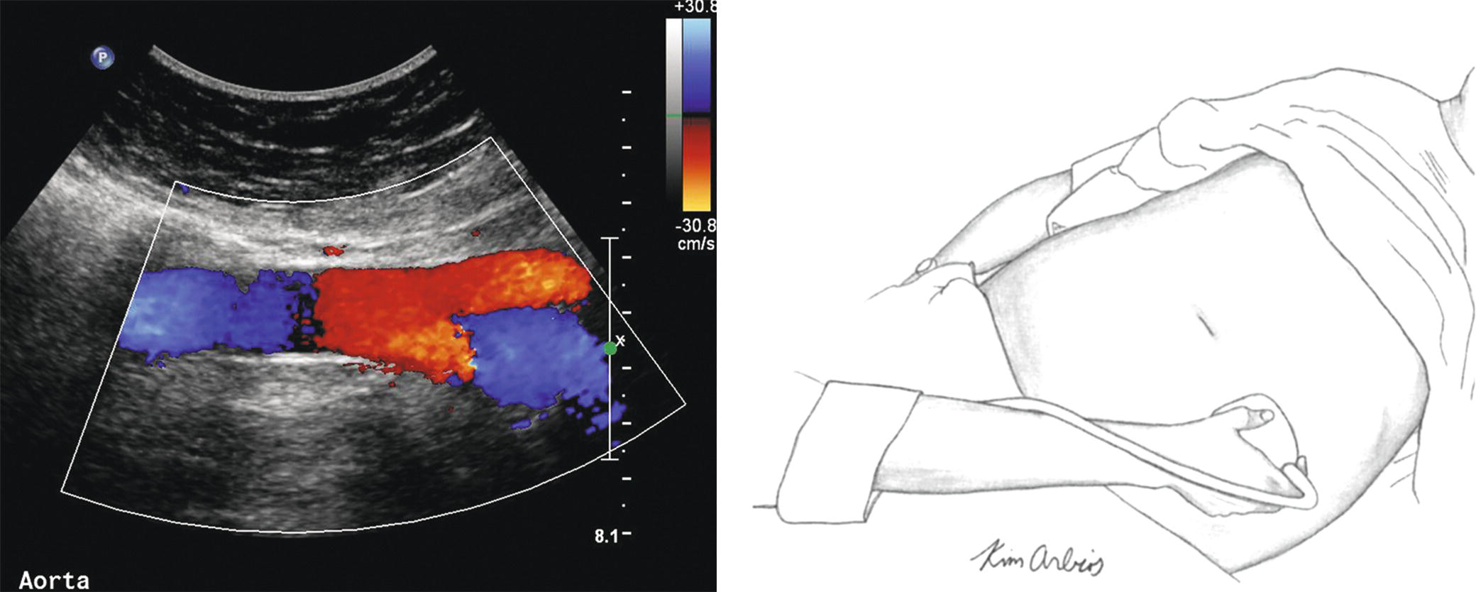 Duplex Evaluation Of Lower Extremity Arterial Occlusive