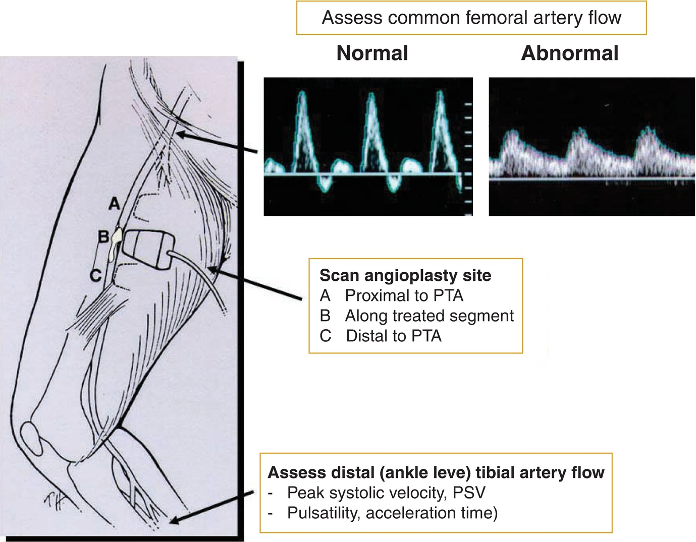 Surveillance After Peripheral Artery Endovascular