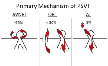 How To Rapidly Diagnose Supraventricular Tachycardia In The Electrophysiology Lab Thoracic Key