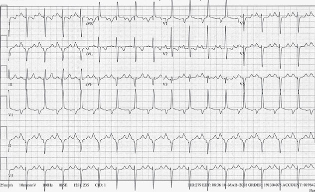 Diagram shows ECG diagnostic criteria on right ventricular with strain and bilateral enlargement.