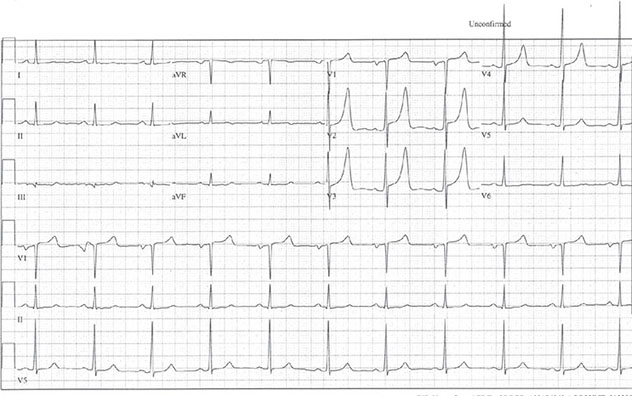 Diagram shows ECH diagnostic criteria of hyperkalemia with peaked tall T waves in V2 and V3.