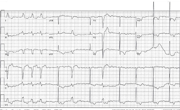 Diagram shows ECH diagnostic criteria of premature ventricular contractions and accelerated idiojunctional rhythm.
