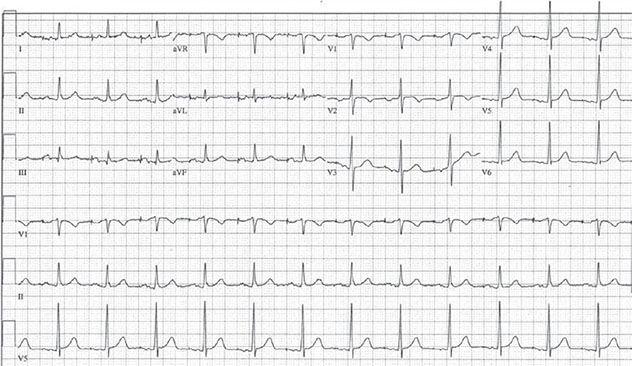 Diagram shows ECH diagnostic criteria of atrial paced rhythm with normal AV conduction.