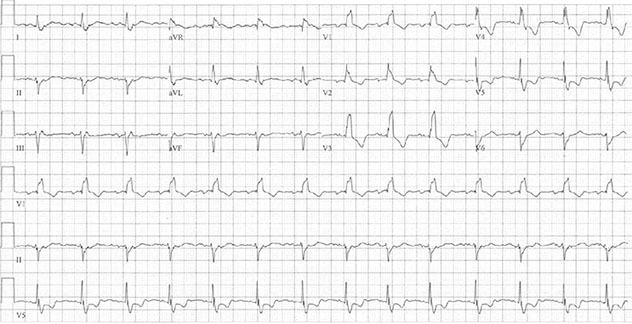 Diagram shows ECH diagnostic criteria of bifascicular block with RBBB and LAFB leading V1 to V4.