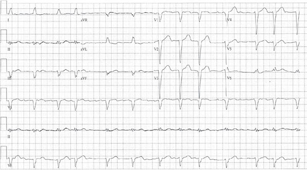 Diagram shows ECH diagnostic criteria of atypical atrial flutter with variable block.