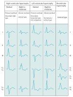 2 Electrocardiography